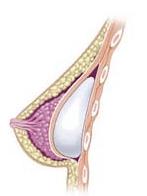 Posizionamento sottomuscolare protesi seno