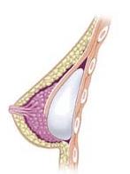 Posizionamento dual plane protesi seno