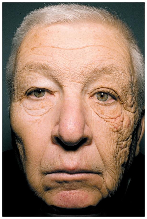 sun damage skin aging face