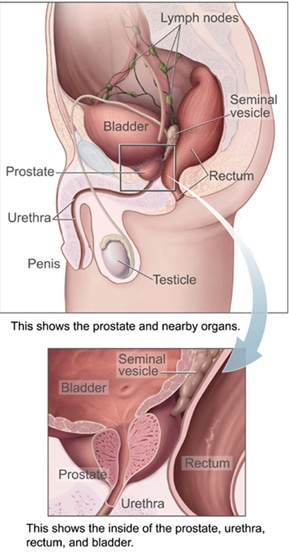 Radical prostatectomy surgery prostate