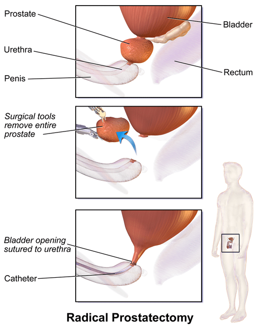prostate prostatectomy surgery
