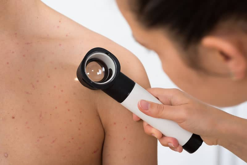 skin check melanoma cancer