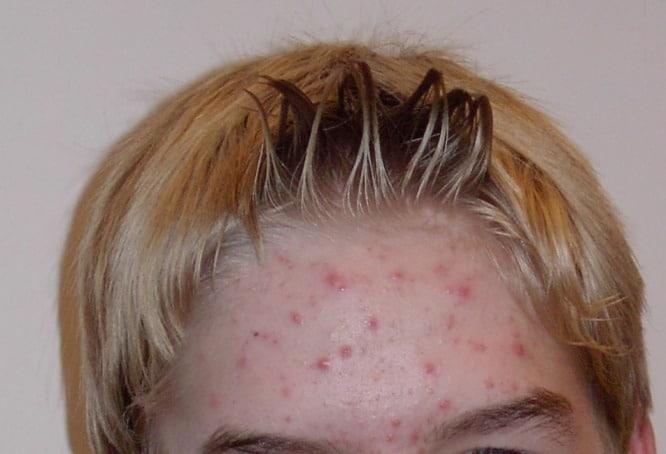 rimedi acne trattamenti creme antiacne