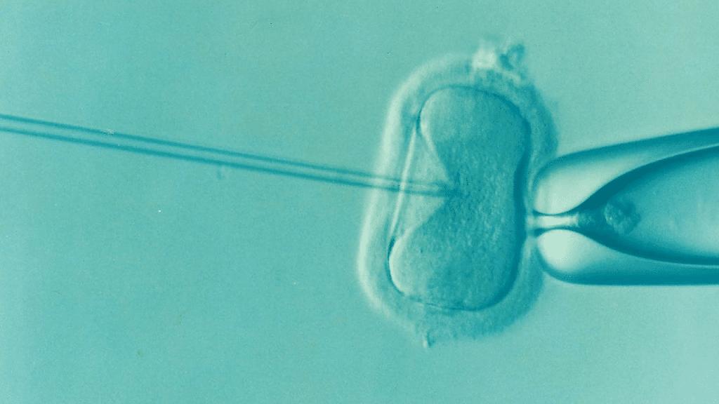 IVF in vitro fertilization