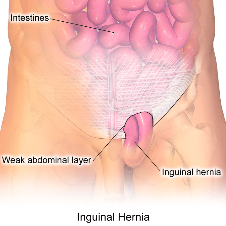 inguinal hernia image and picture of inguinal bulging